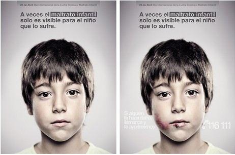 las dos imágenes que muestra el cartel de la fundación Anar